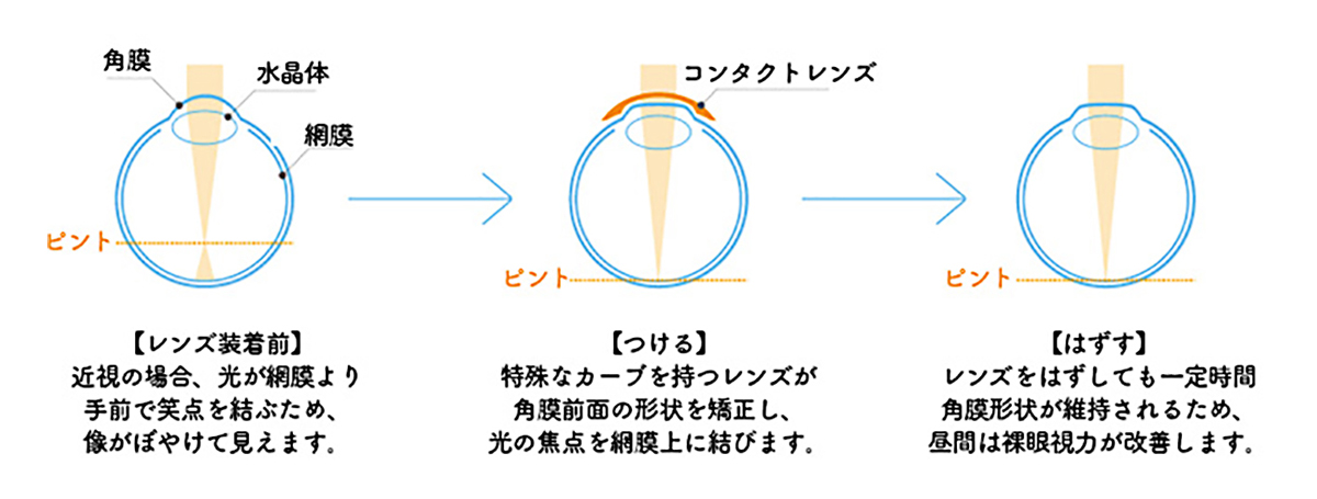 オルソケラトロジーの仕組み